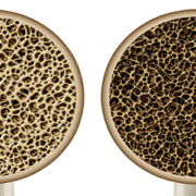 osteoporosis-implantology-milan