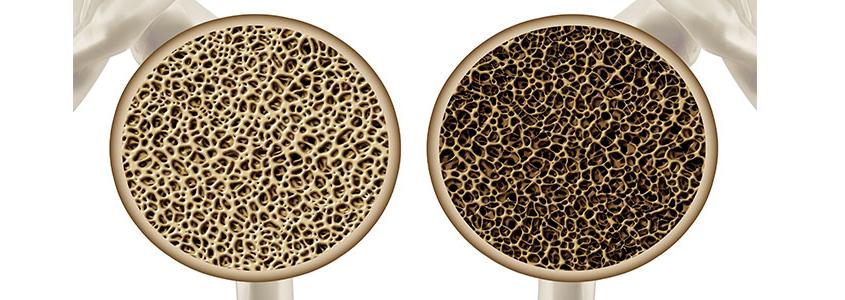 osteoporosi-implantologia-milano