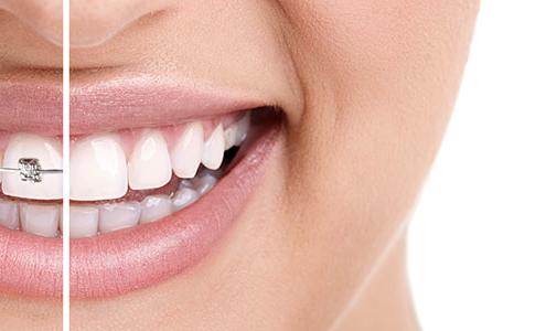 salute del parodonto e apparecchio dei denti