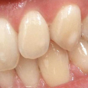 defects of the enamel