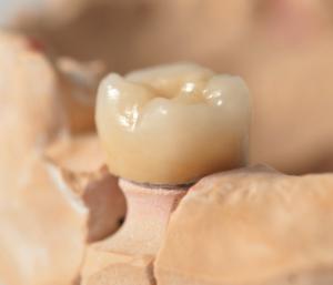protesi in zirconia implantologia