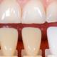 efficacia dello sbiancamento dentale