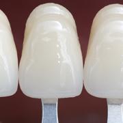 faccette dentali si usurano