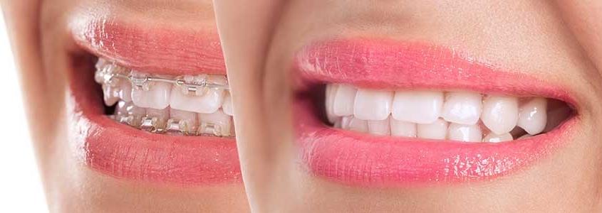 apparecchio di contenzione ortodonzia milano