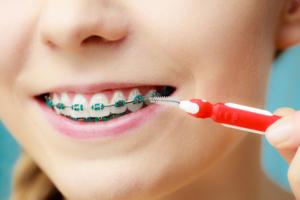 ortodonzia lesioni cariose
