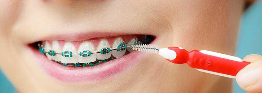 recessioni gengivali apparecchio denti dentista milano