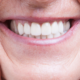 resistenza della zirconia protesi dentali