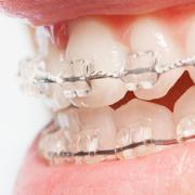 disallineamento dei denti ortodonzia milano