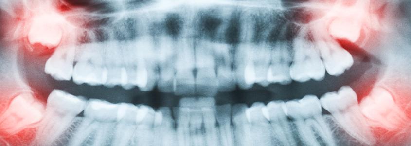 mantenere il dente del giudizio dentista milano
