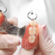 protesi parziali rimovibili dentista milano