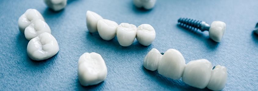 sopravvivenza impianti dentali