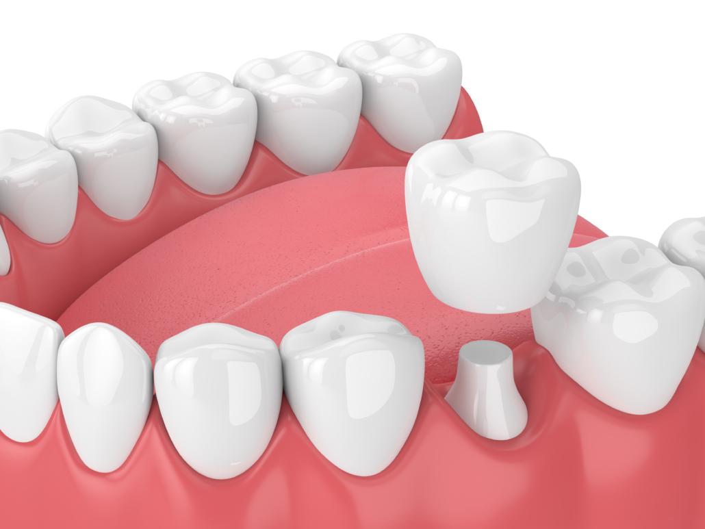 capsule dentali sostituzione