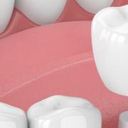 capsule dentali