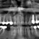 cura della perimplantite dentista milano