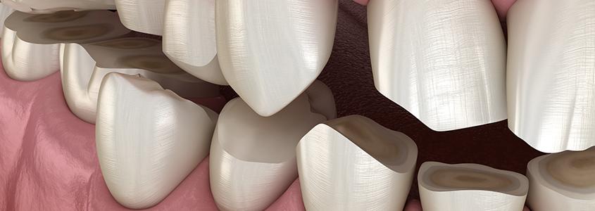 denti piccoli dentista Milano