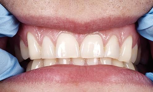 gengivectomia rimozione gengive dentista milano