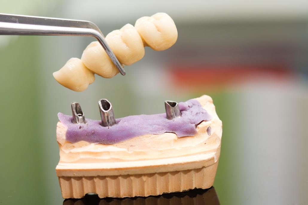 aumentare la stabilità primaria implantologia milano