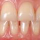 fenotipo gengivale parodontite dentista milano