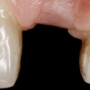 densità ossea implantologia milano