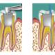 fallimento della cura canalare dentista milano