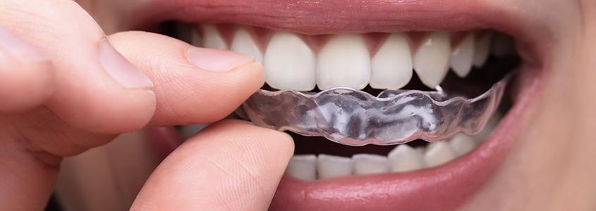 bite dentale milano