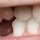 autotrapianto del dente dentista milano