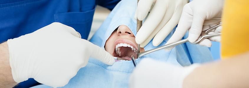 punti di sutura chirurgia orale