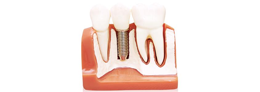 carico immediato o differito implantologia milano