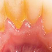 malattie sistemiche parodontite dentista milano