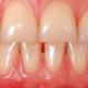 ispessimento delle gengive dentista milano