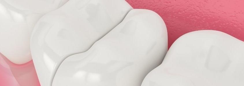 dente incrinato