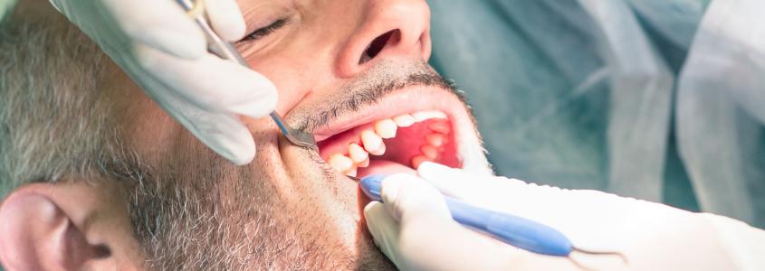 dolore dopo la devitalizzazione dentista milano