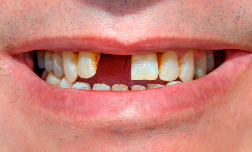 sostituire i denti caduti milano