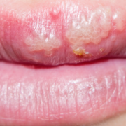 lesioni orali comuni dentista milano