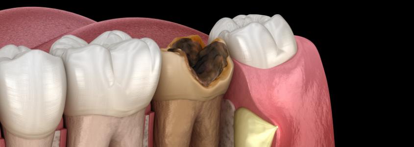 incappucciamento diretto del dente