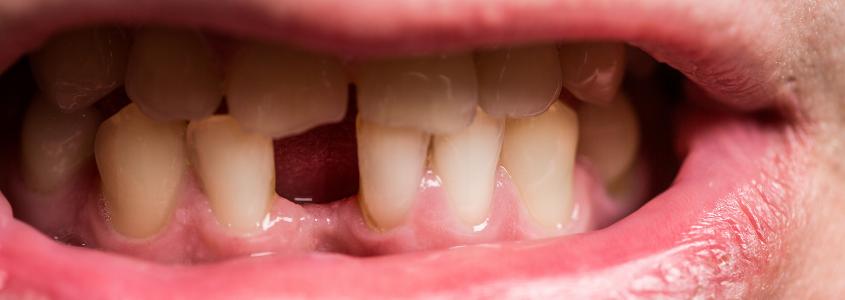 erosione dei denti
