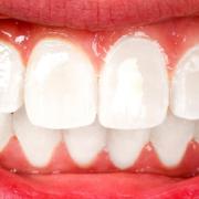 serrare i denti di giorno