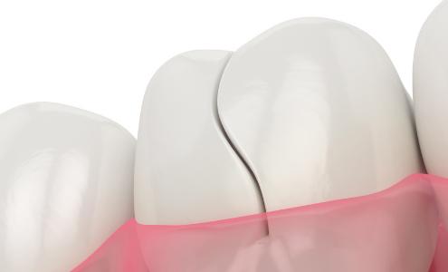 incrinatura del dente